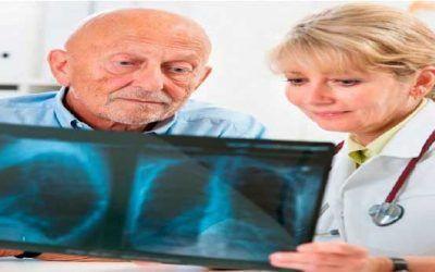 Cuidados cáncer de pulmón