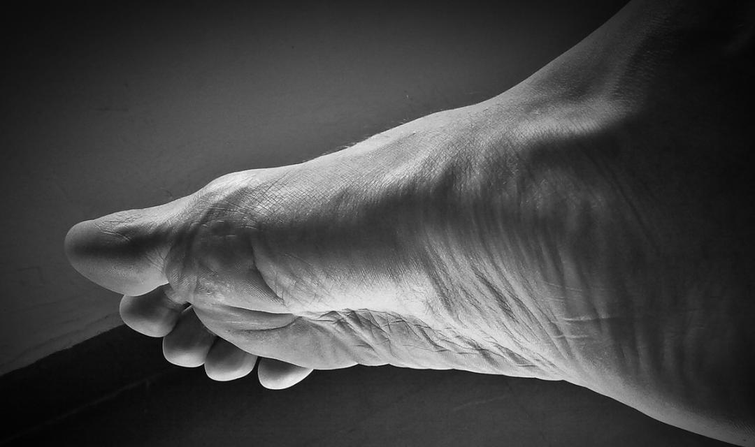 Síndrome del pie diabético